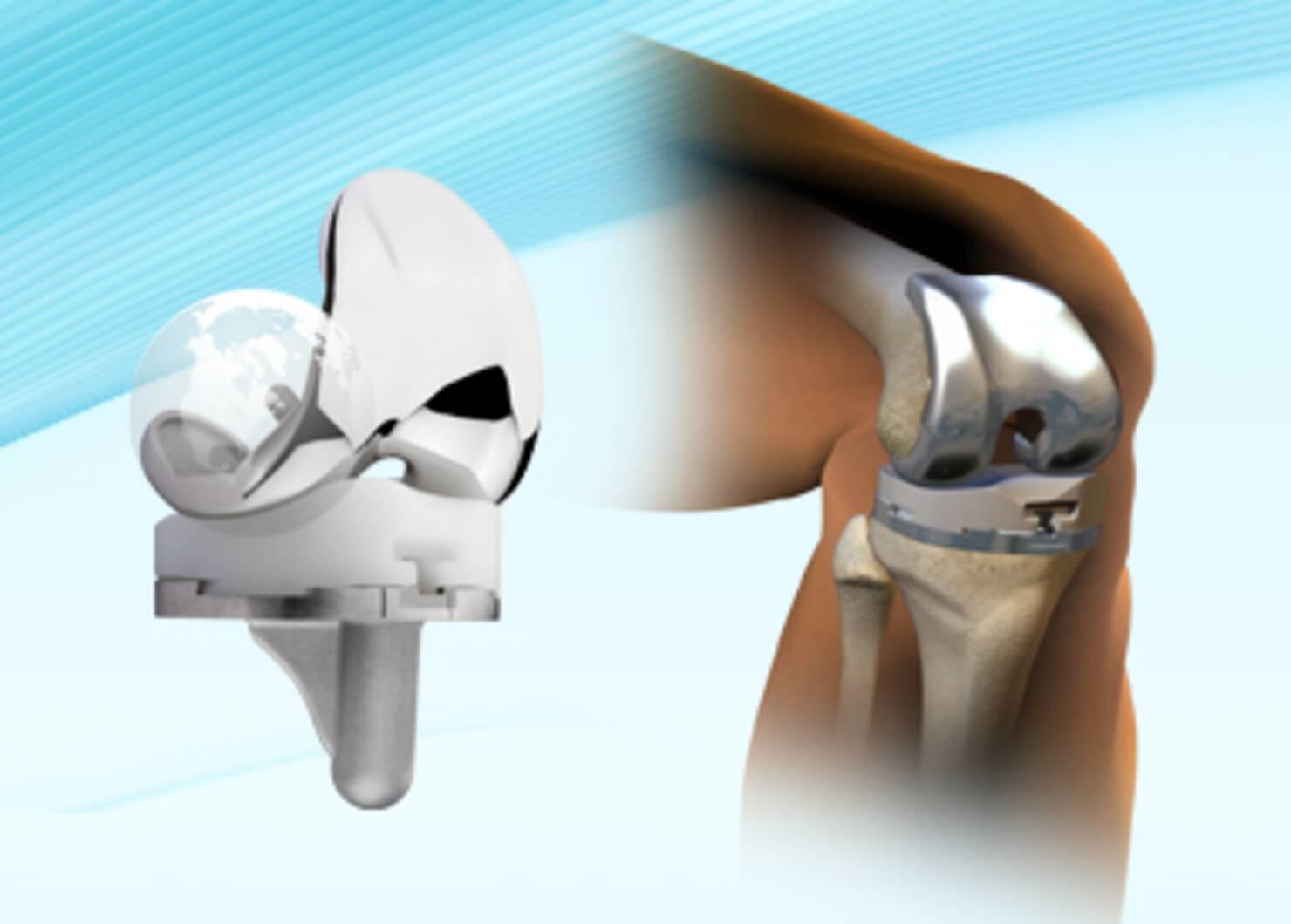 Orthopedie Knieën