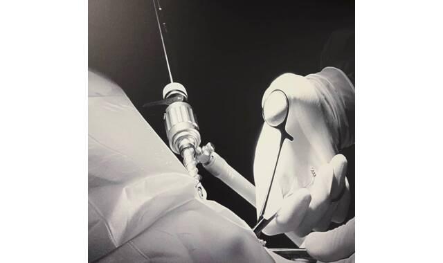 De mogelijkheden van laparoscopie